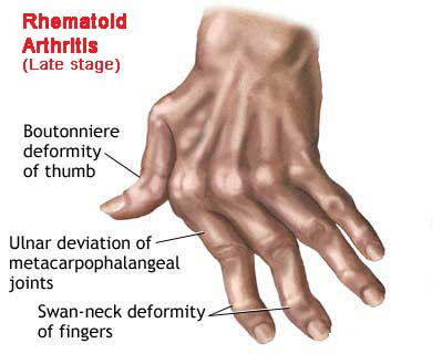 A new view of drugs used to treat rheumatoid arthritis