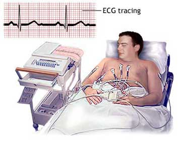 Novel target for treating arrhythmias