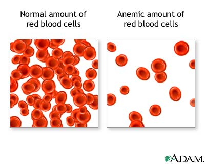Transferrin to fight anemia