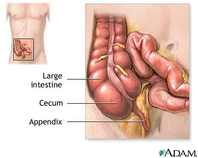 Would you experience appendicitis?