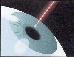 Laser Surgery Safer Than Contacts
