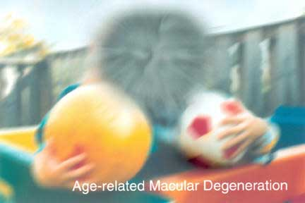 Limiting refined carbohydrates may stall AMD progression