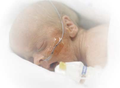 Steroid Treatment Offers No Benefit In Preemies