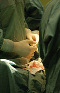Study finds that practice makes perfect in lung cancer surgery