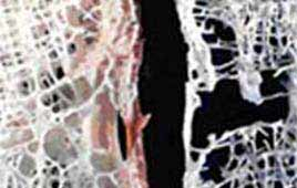 Treating steroid-induced osteoporosis