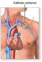 Heart Catheters Do Not Benefit Patients