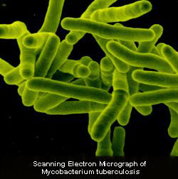Decoding Genomes Of Tuberculosis Bacteria