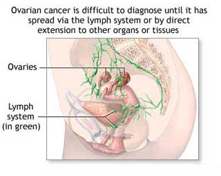 Predicting the future in ovarian cancer