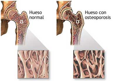 Link between obesity and bone mineral density