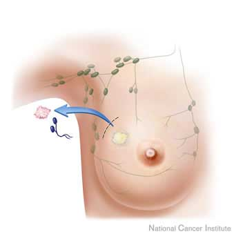 Elastography reduces  breast biopsies