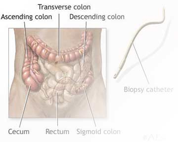 Underuse of colorectal cancer screening