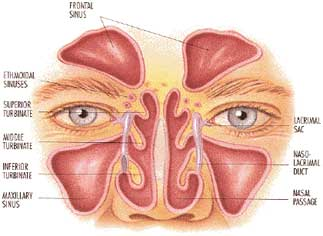 Common treatments for sinus infections may not work
