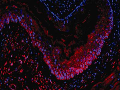 Esophagus Stem Cells Grow Into Transplantable Tissue
