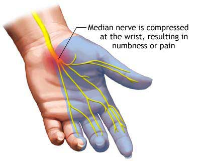 Avoiding Carpal Tunnel Syndrome