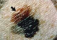 What's the link between Parkinsonism and melanoma?