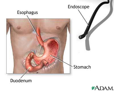 New endoscopic treatment for Barrett's esophagus