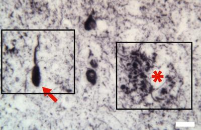 Three Brain Diseases Linked to Same Neural Protein