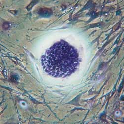 Treating male infertility with stem cells