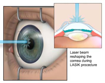 Dry eye syndrome after LASIK surgery