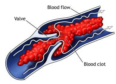 Do you have a family history of blood clots?