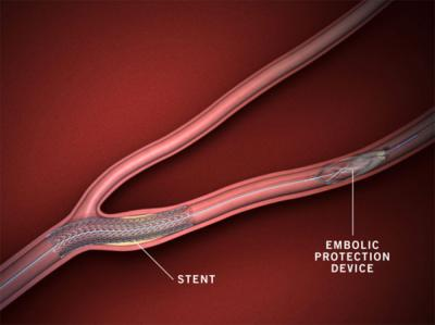 Carotid stenting as alternative to surgery