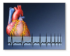 Bisphosphonate heart rhythm link