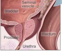 Heart drug cuts prostate cancer risk