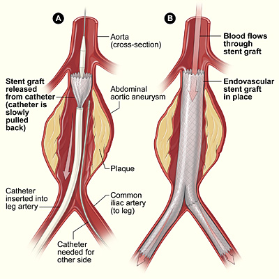 Screening men over 65 for abdominal aortic aneurysms