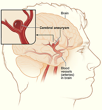 CTA useful in detecting ruptured cerebral aneurysms