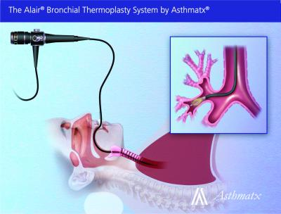 Bronchial thermoplasty for severe asthma patients