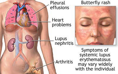 Cause of lupus
