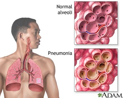 Men at increased risk of death from pneumonia
