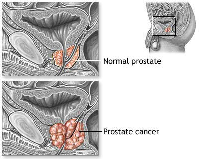 Younger men with advanced prostate cancer