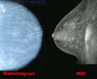 MRI for imaging breast cancer?
