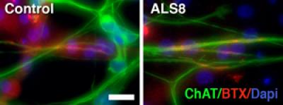Stem cell model offers clues to cause of inherited ALS