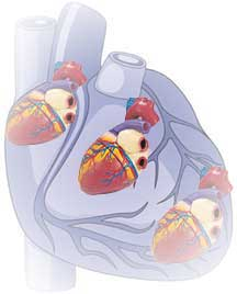 gene therapy for hereditary heart conditions