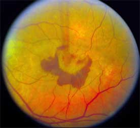 Immune cells protect retina from damage