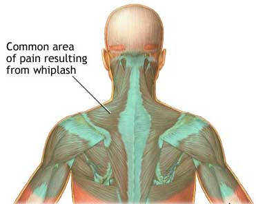 Whiplash may produce delayed jaw pain