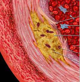 Low-carb diets linked to atherosclerosis