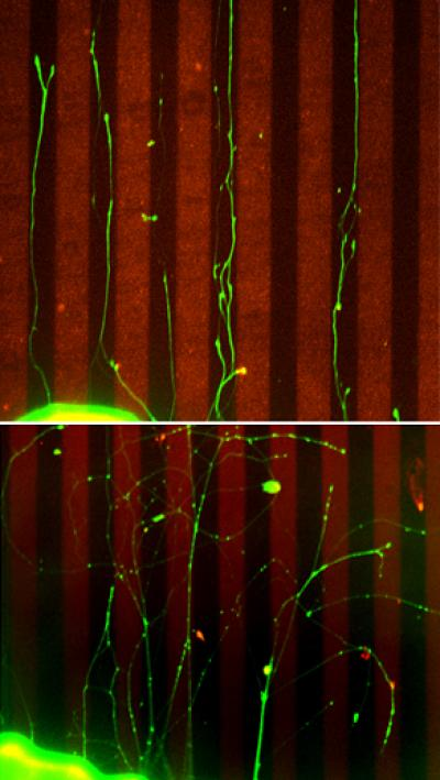 Keeping nerve axons on target