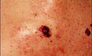 Ultrasound can predict survival in melanoma