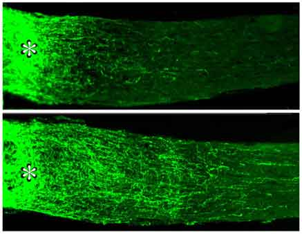 Making Nerve Fibers Regenerae