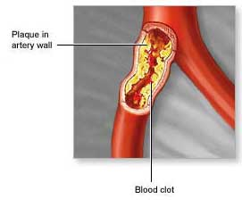 Children Of Diabetics Show Signs Of Atherosclerosis