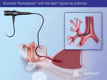 Thermal Energy Procedure For Asthma