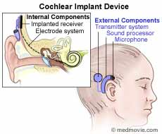 With Cochlear Implants