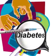Type 2 Diabetes Increases The Risk Of Glaucoma