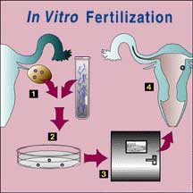 Age And Success Of Assisted Reproductive Technology