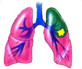 Do you really have to remove your lung to cure lung cancer?