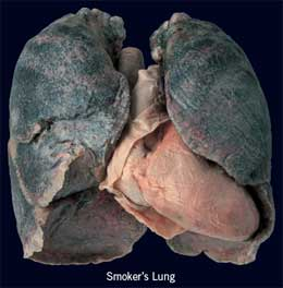 A Closer Look At Smoker Lungs