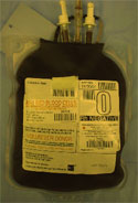 Blood Transfusions Raise Infection And Death Risk